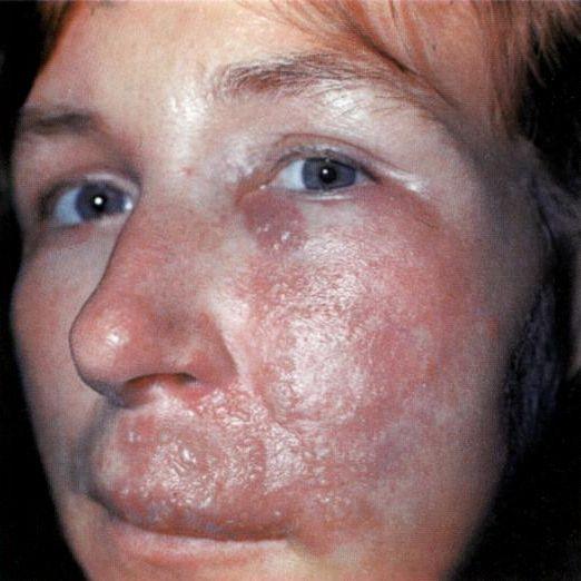рожа на лице симптомы и лечение приобретают
